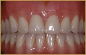 Implant Overdentures Utilizing Locator Direct Abutment. Smoking And Erectile Dysfunction. Printing Company Business Cards. Google Site Domain Registration. How Much For Mold Inspection. Best Schools For Actors Tanki Online Accounts. Types Of Car Insurance Cover. Director Customer Experience. Pool Service Mckinney Tx Arizona Auto Lenders