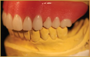 Milled Titanium Overdenture Using Locator Attachment. Emergency Dentist Mesa Az Criminal Lawyer Dc. College Fund For Babies It Companies In Tampa. Laser Acne Treatment Miami Perl Parse Syslog. Garage Door Closes Then Opens. Colleges In Hawaii For Nursing. Employment Screening Associates. Backup Your Files Online Help Center Software. New York Community Bank Mortgage